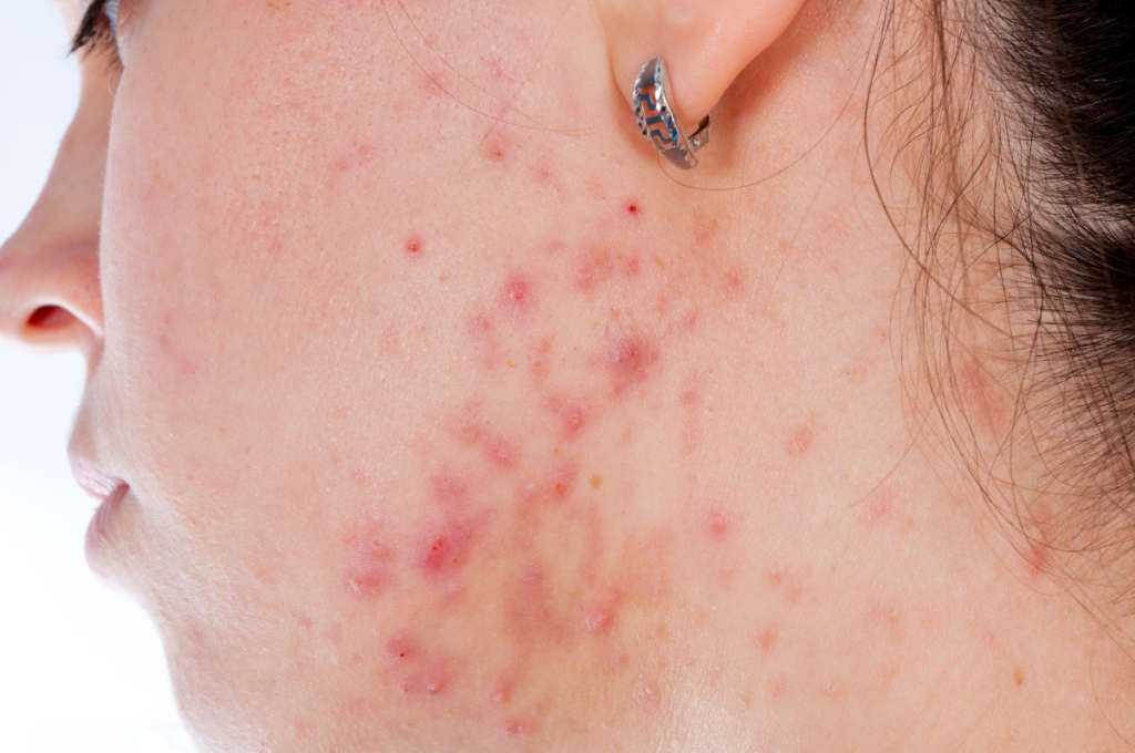 The Best Way to Control Teenage Acne